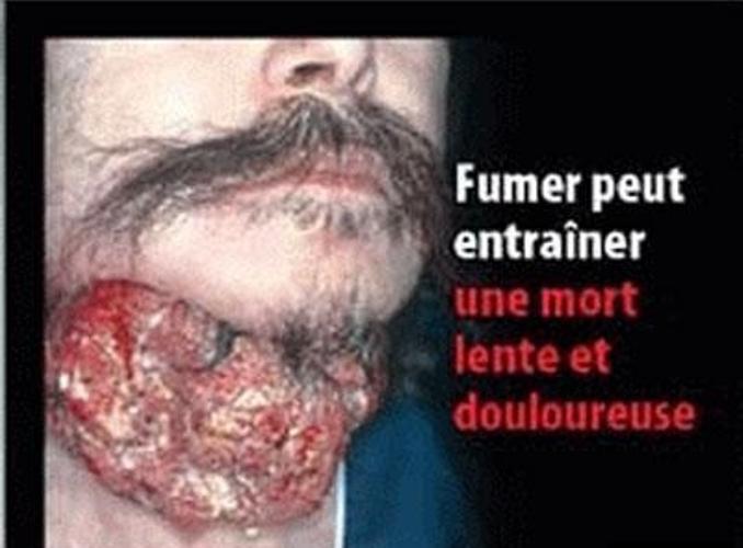 Si a cessé de fumer on peut fumer le narguilé